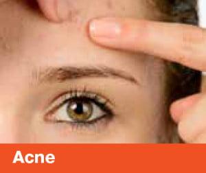 HealthSol_Skin_A5TipSheet-TIPS1