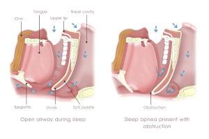 A diagram illustrating Obstruction Sleep Apnea (OSA).
